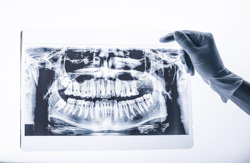 Rayon X dentaire de bouche de participation de main d'isolement photos stock