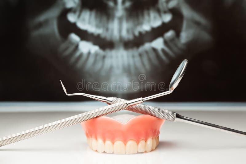 Rayon X dentaire de carter. photos stock