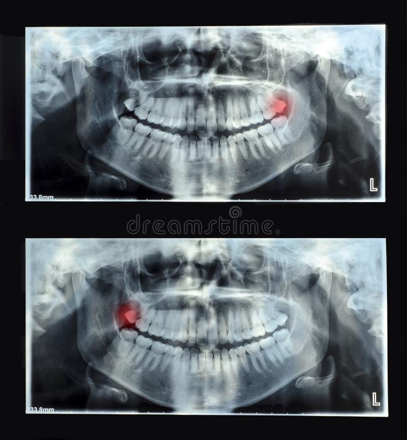 Rayon X dentaire panoramique avec la dent de sagesse supérieure supérieure (huit photos libres de droits