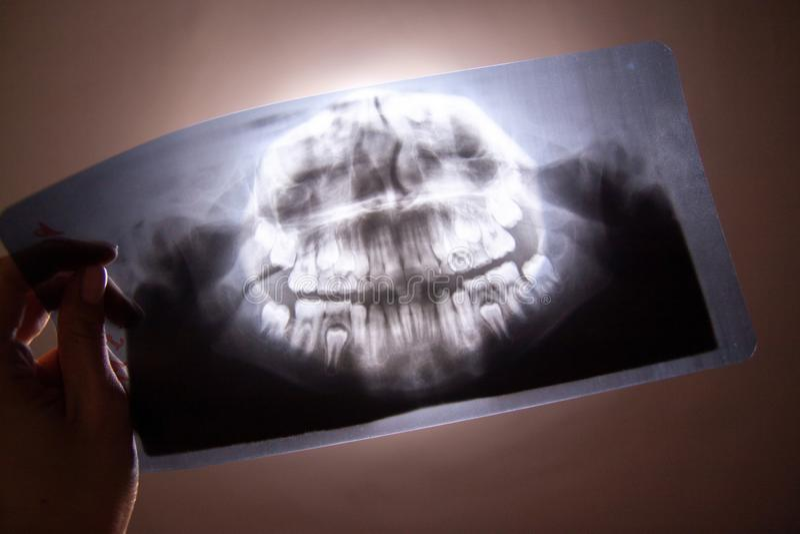Rayon X dentaire panoramique de photo d'enfant avec des dents de lait et des premières dents molaires dans la main de docteur Foy images stock
