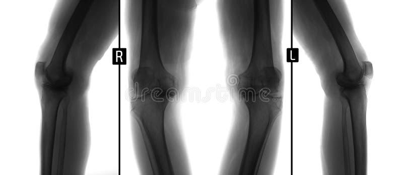 Rayon X des articulations du genou Déformer l'ostéoarthrite Négatif photos libres de droits