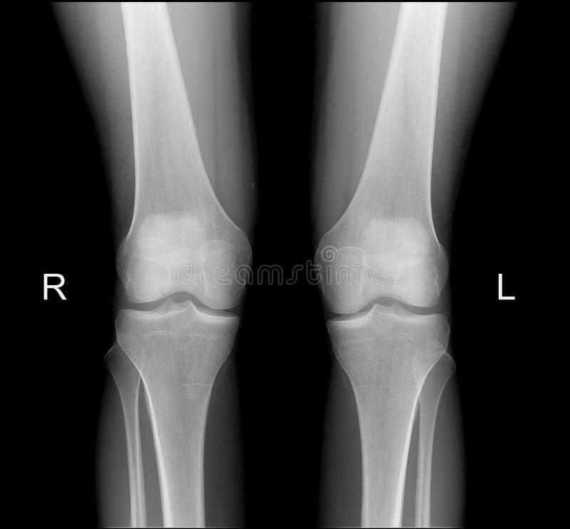 Rayon X des articulations du genou dans la projection frontale photo stock