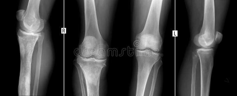 Rayon X des articulations du genou Ostéomyélite de la droite tibial image libre de droits