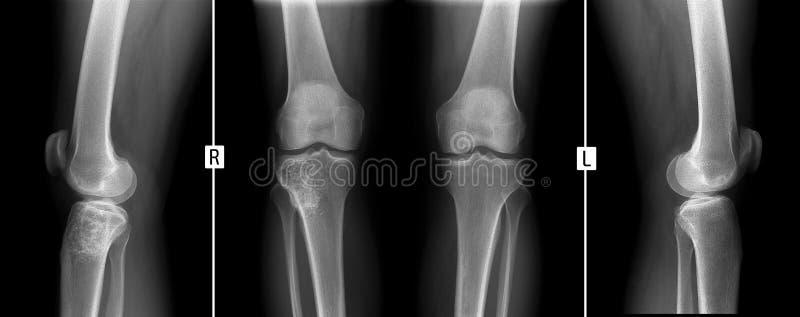 Rayon X des articulations du genou Tumeur géante de cellules de la droite tibial images stock