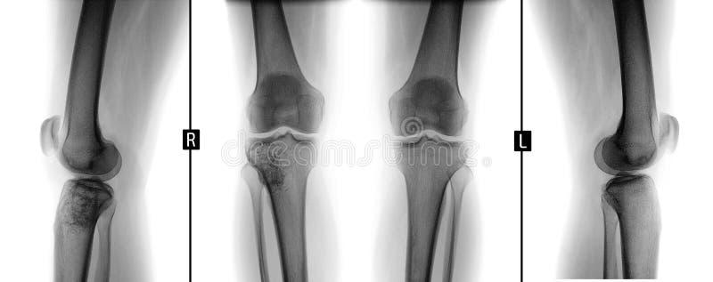 Rayon X des articulations du genou Tumeur géante de cellules de la droite tibial Négatif photographie stock libre de droits