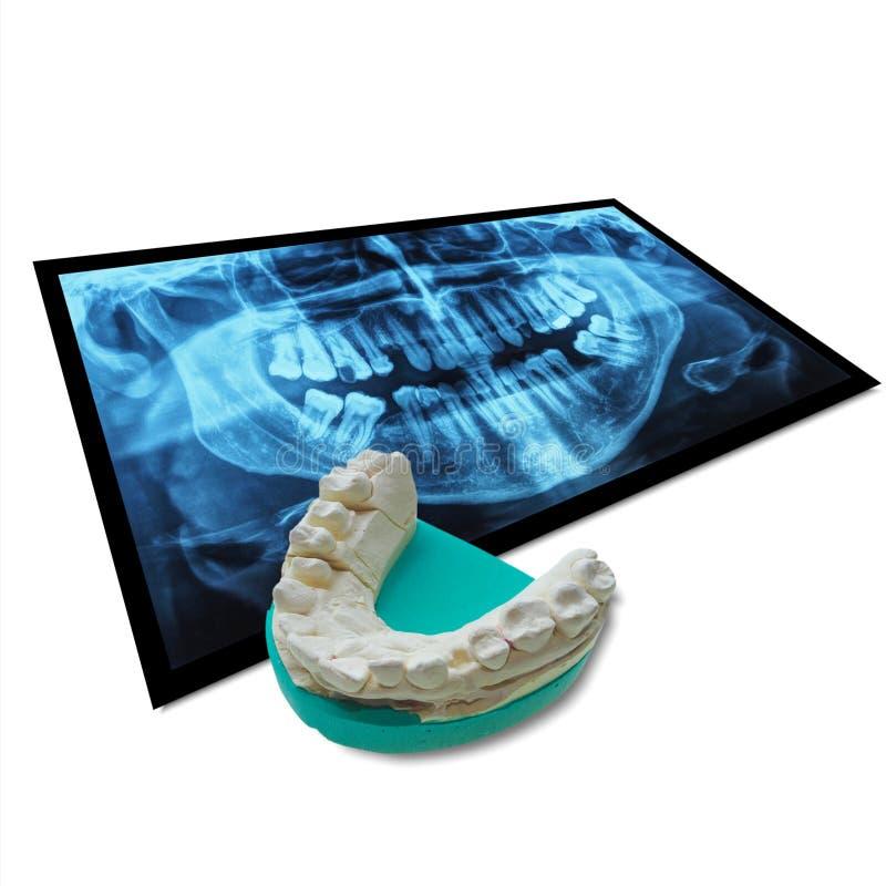 Rayon X des dents avec la fonte positive de dents photos stock