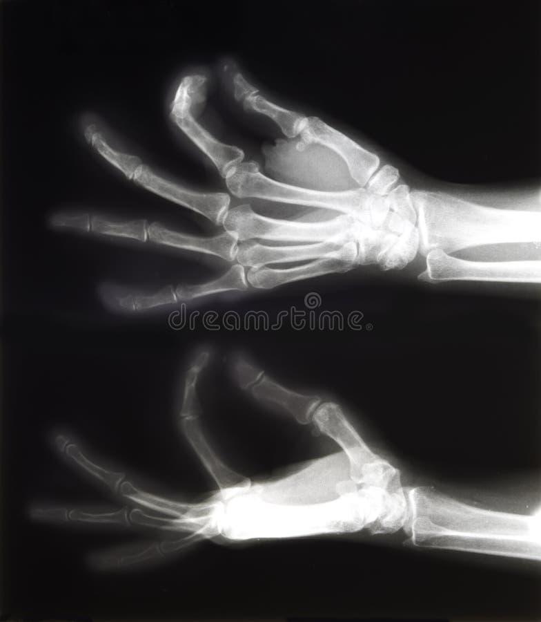 Rayon X des mains image libre de droits