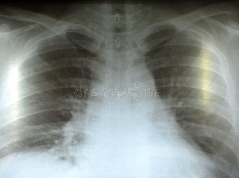 Rayon X des poumons image stock