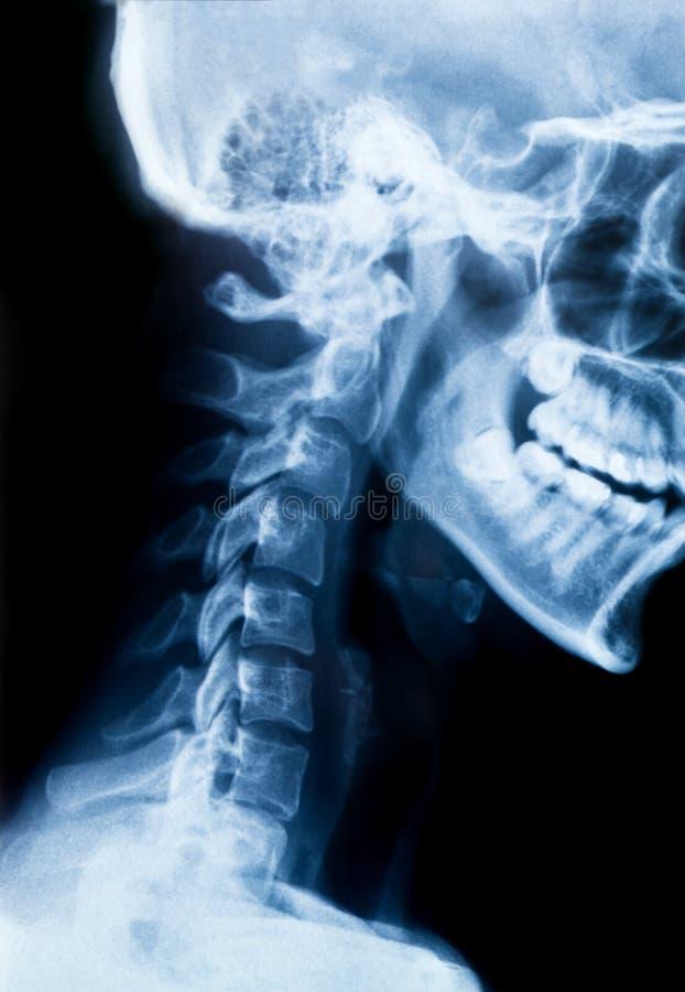 Rayon X du cou et du crâne - vue de côté photographie stock libre de droits