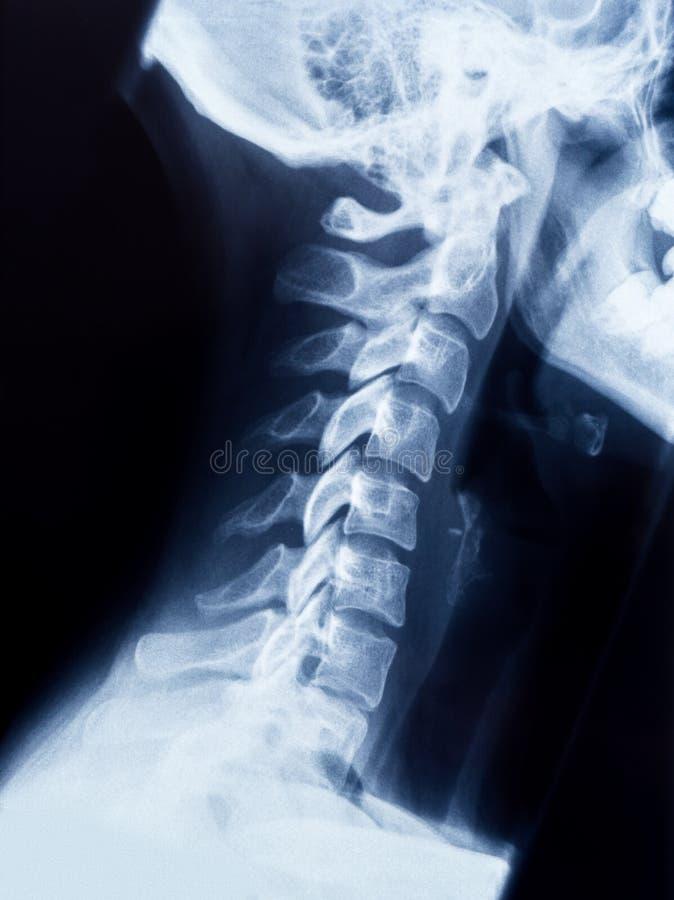 Rayon X du cou et du crâne - vue de côté photo stock