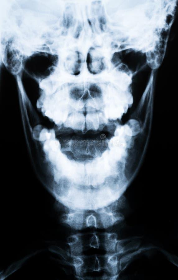 Rayon X du cou et du crâne - vue de face photos stock