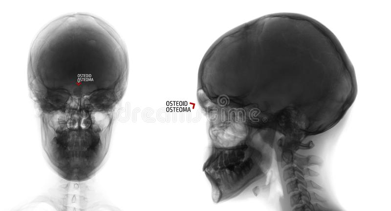Rayon X du crâne Ostéoïde-osteoma du sinus frontal Négatif repère photo stock