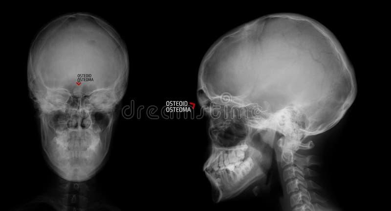 Rayon X du crâne Ostéoïde-osteoma du sinus frontal repère image libre de droits