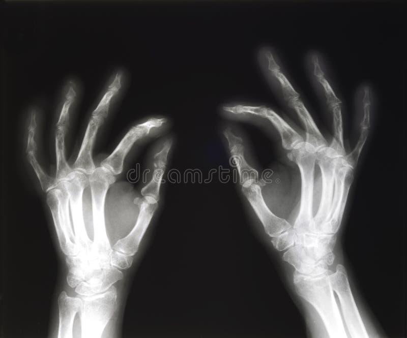 Rayon X du pincement de mains photos libres de droits