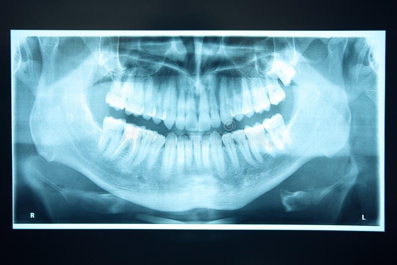 Rayon X panoramique des dents photographie stock libre de droits