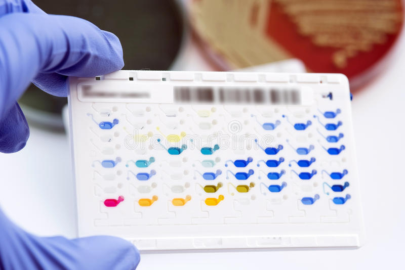 Reagent Strip for biochem and drug sensitivity test for identifield pathogen. In routine microbiology,analysis and report in laboratory royalty free stock photos