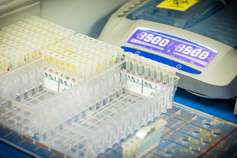 Reagert for blood group in laboratory.Blood grouping test. royalty free stock photos