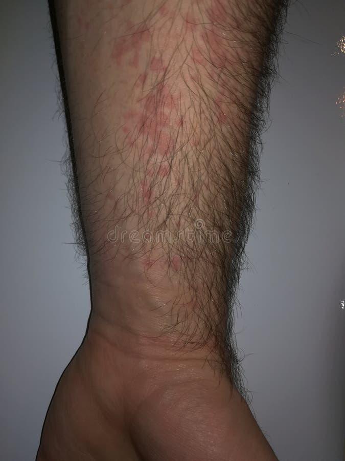 Reaktion av handen till allergin arkivfoton