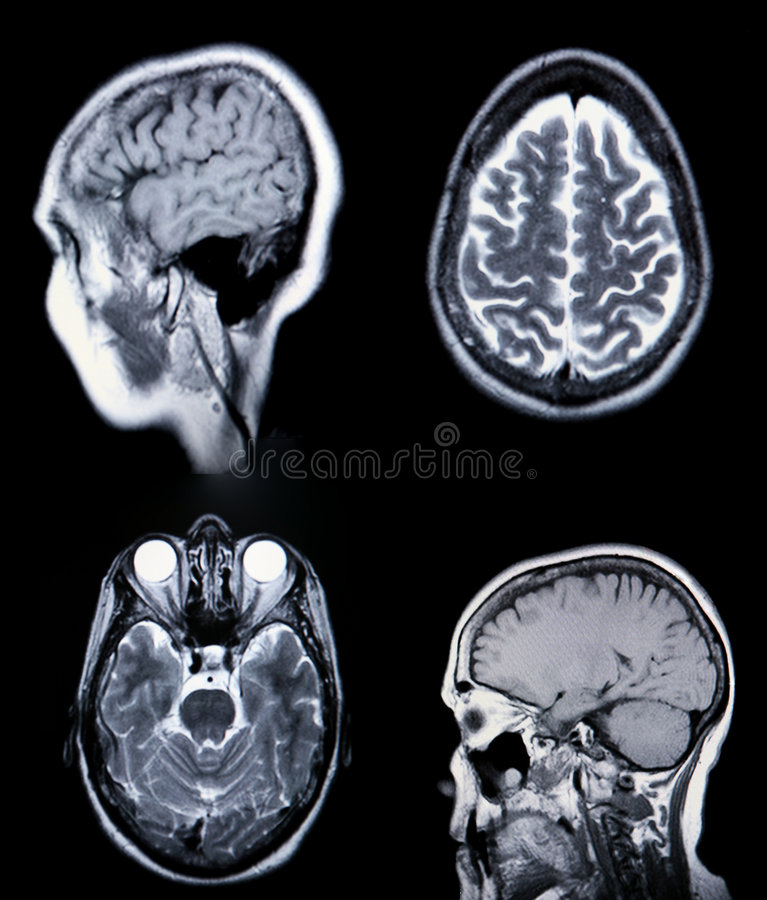 A real MRI/ MRA (Magnetic Resonance Angiogram) of. High Resolution MRI/ MRA (Magnetic Resonance Angiogram) of the brain vasculature (arteries) CRT Monitor Grain royalty free stock photos