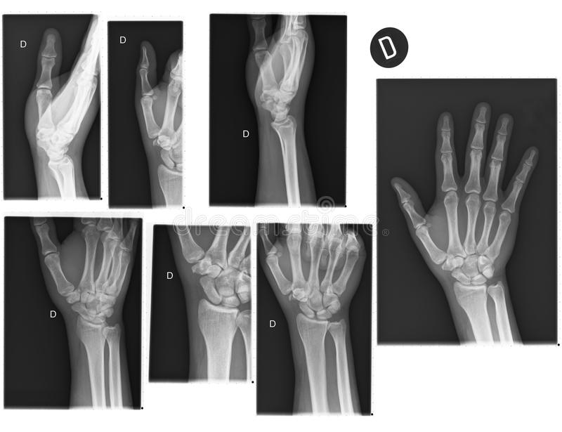 Real X-rays of the Hand and wrist. (broken wrist stock photography