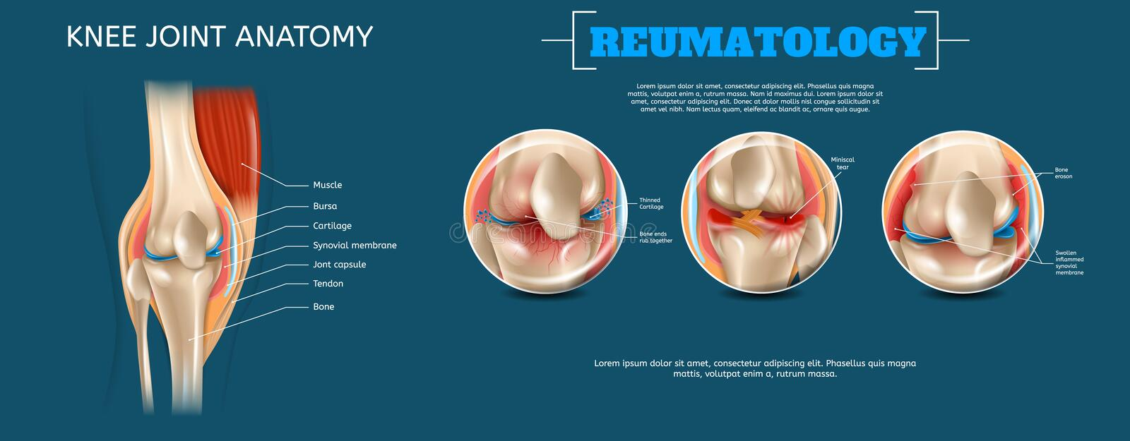 Realistic Banner Illustration Knee Joint Anatomy. 3d Vector Reumatology Image Constituent Elements Structure Human Knee Joint Muscle, Bursa, Cartilage stock illustration