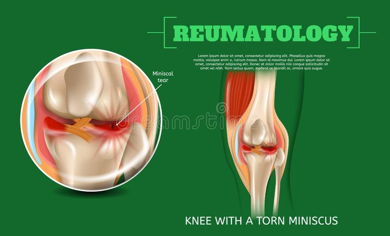 Realistic 3d Illustration Knee with Torn Miniscus royalty free illustration