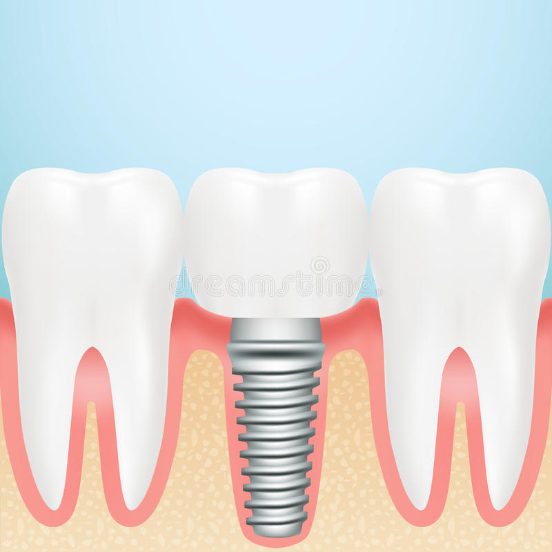 Realistic Dental Implant. Installation Of Dental Implant With All Parts Crown, Abutment, On A Background royalty free illustration