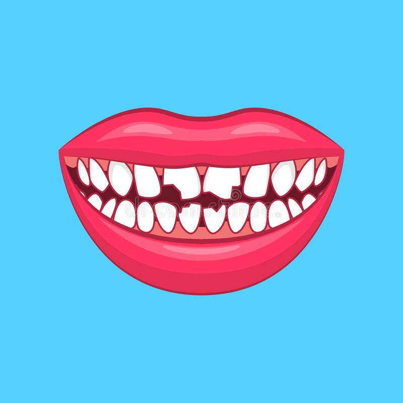 Realistic Detailed 3d Dental Problem on a Blue. Vector royalty free illustration