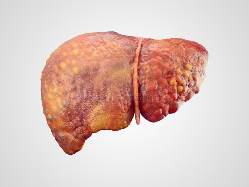 Realistic illustration of cirrhosis of human liver. Isolated on white vector illustration