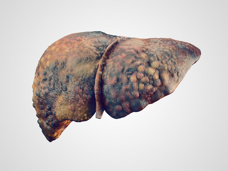 Realistic illustration of cirrhosis of human liver. Isolated on white royalty free illustration