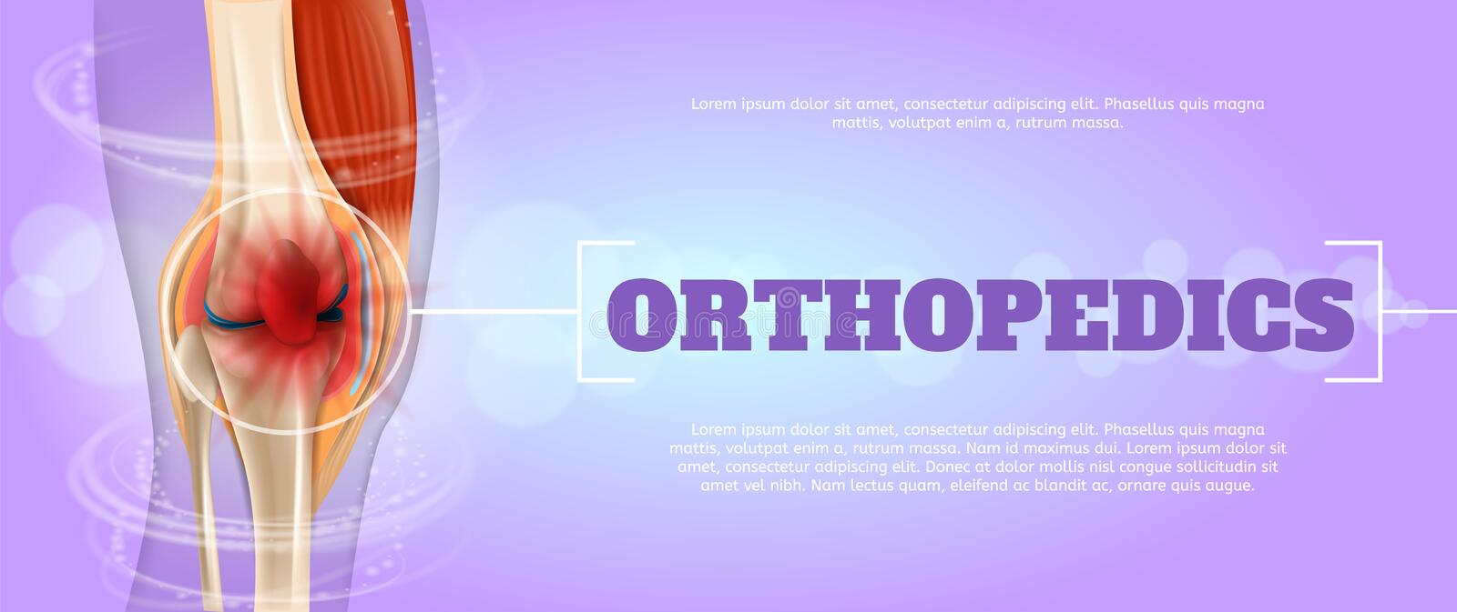 Realistic Illustration Orthopedics Medicine in 3d vector illustration