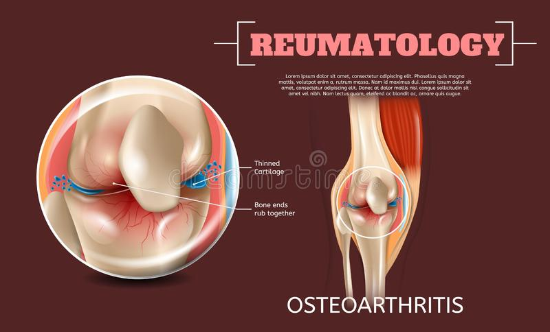 Realistic Illustration Osteoarthritis Knee Joint vector illustration