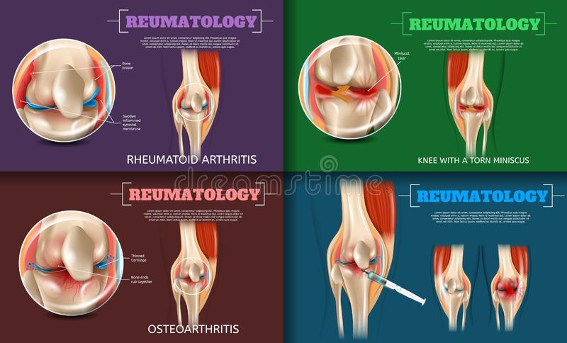 Realistic Illustration Reumatology Medicine in 3d vector illustration