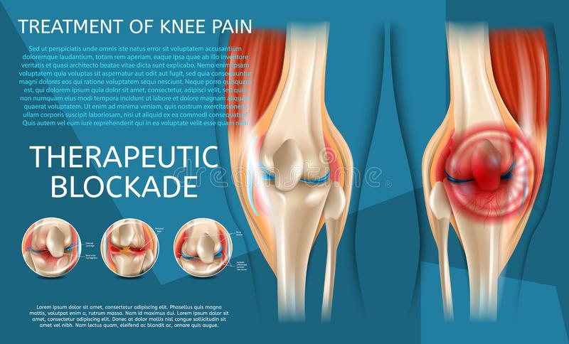 Realistic Illustration Treatment of Knee Pain vector illustration
