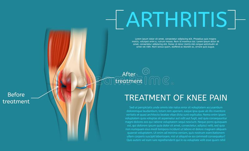 Realistic Illustration Treatment of Knee Pain stock illustration