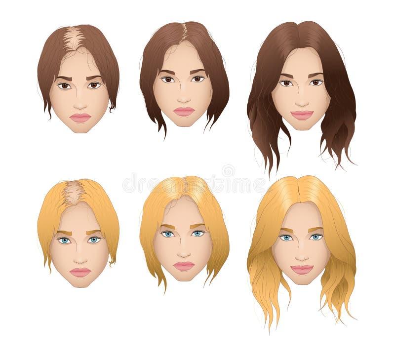 Realistic illustration of woman hair loss royalty free illustration