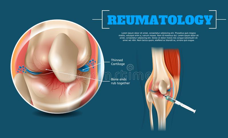 Realistic Image Benefits Correct Injection Site. 3d Banner Reumatology Anatomy Human Knee. Closeup View Knee Joint and Injection Site with Syringe Fluid to royalty free illustration