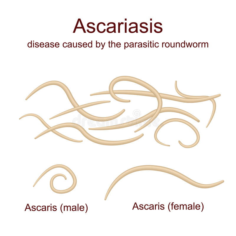 Ascariasis Roundworms