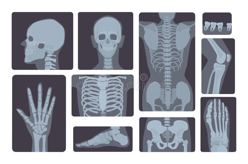 Realistic x-ray shots collection. Human body hand, leg, skull, foot, chest, teeth, spine and other. Realistic x-ray shots collection. Human body hand, leg royalty free illustration