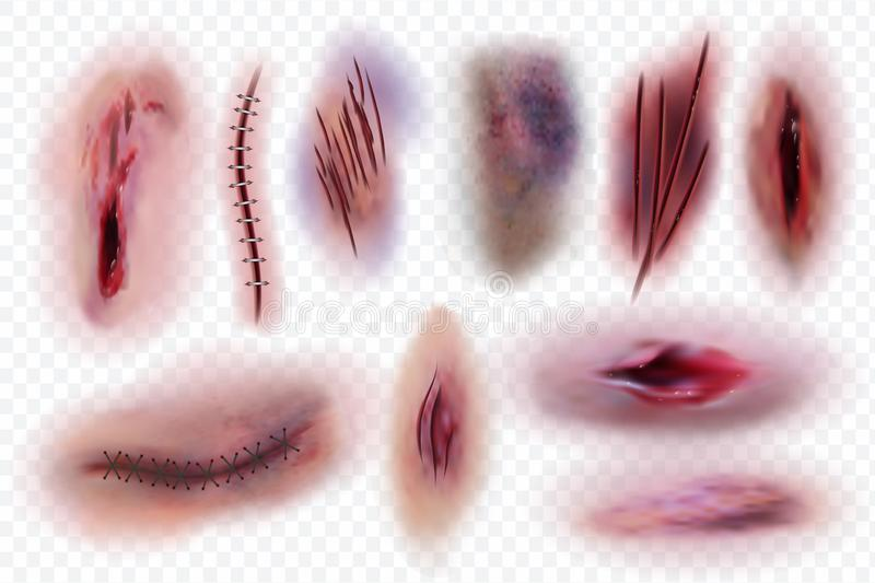 Realistic scars. Wound, surgical stitches and bruis, skin cuts. Bloody wounds vector isolated set royalty free illustration