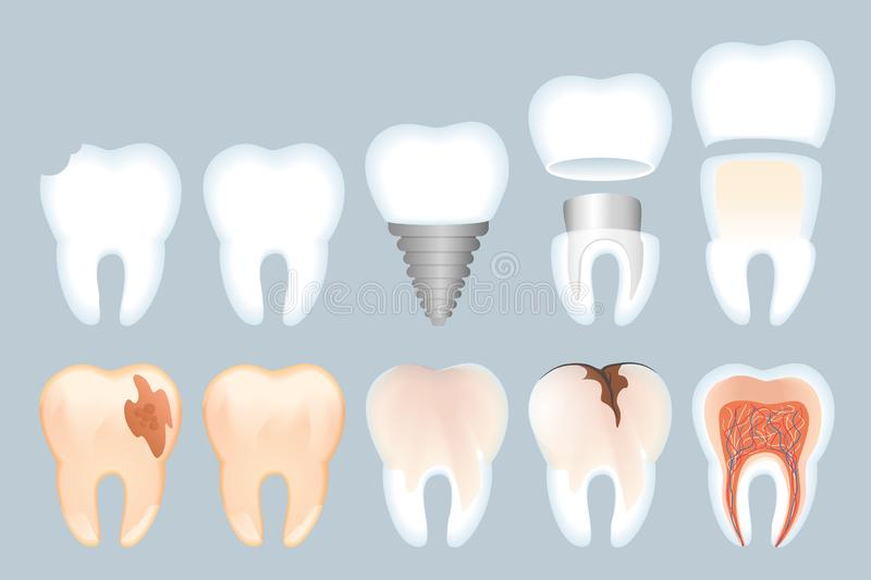 Realistic Tooth Structure Vector Illustration stock illustration