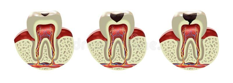 Realistische Ansicht des menschlichen Zahnverfall-Krankheitsquerschnitts lizenzfreie abbildung