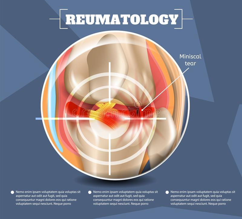 Realistische Illustration Reumatology-Medizin in 3d lizenzfreie abbildung