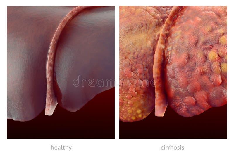 Realistische Illustration von gesunden und kranken menschlichen Lebern lizenzfreies stockfoto
