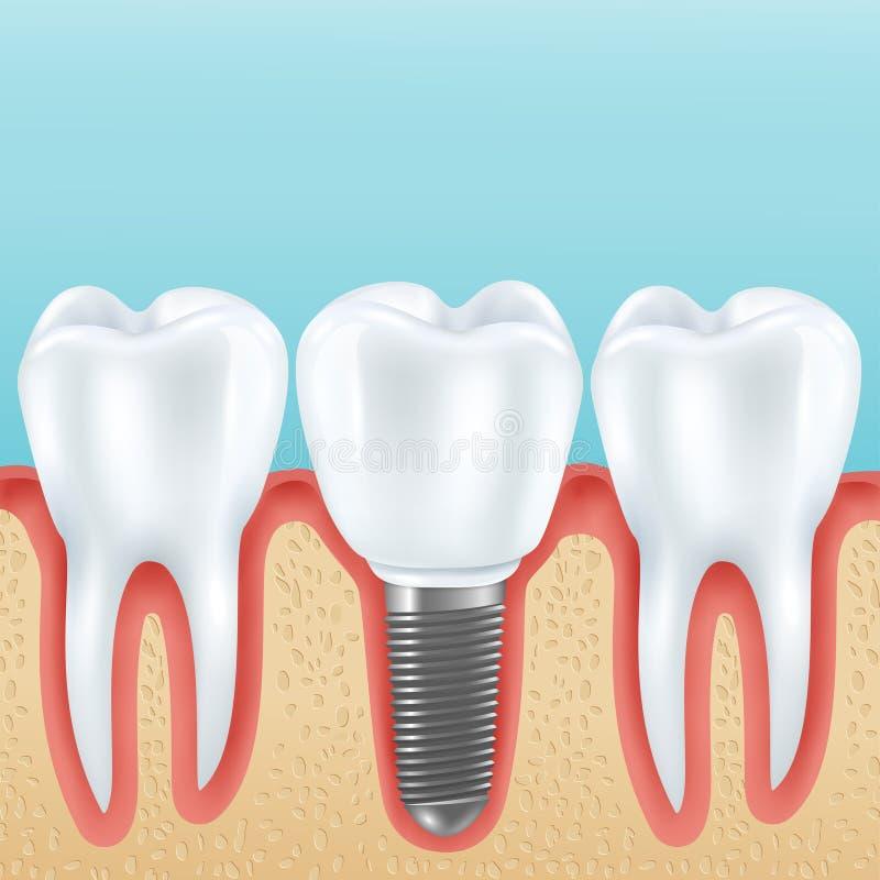 Realistisk illustration för tand- implantat stock illustrationer