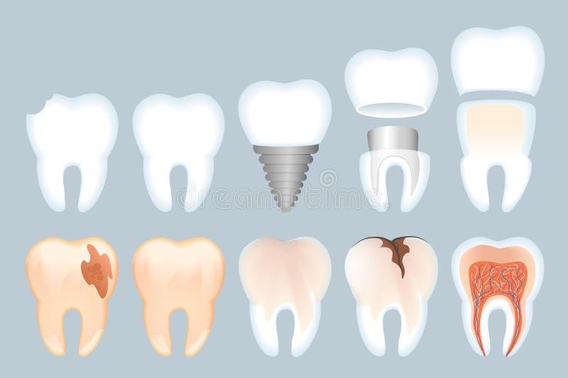 Realistisk illustration för tandstrukturvektor stock illustrationer