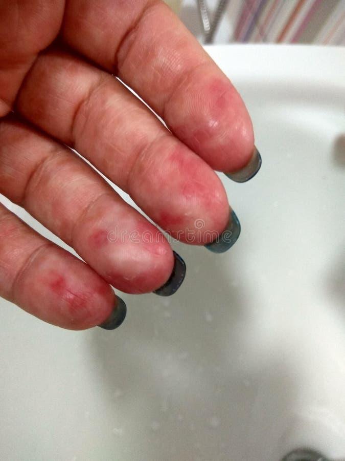 Realistyczna Coxsackie wirusowa wysypka na rękach obraz stock