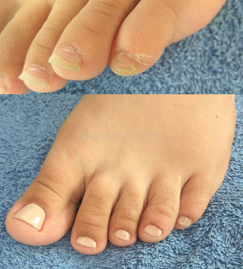 Realistyczny pedicure, chiropody: before and after zdjęcia royalty free