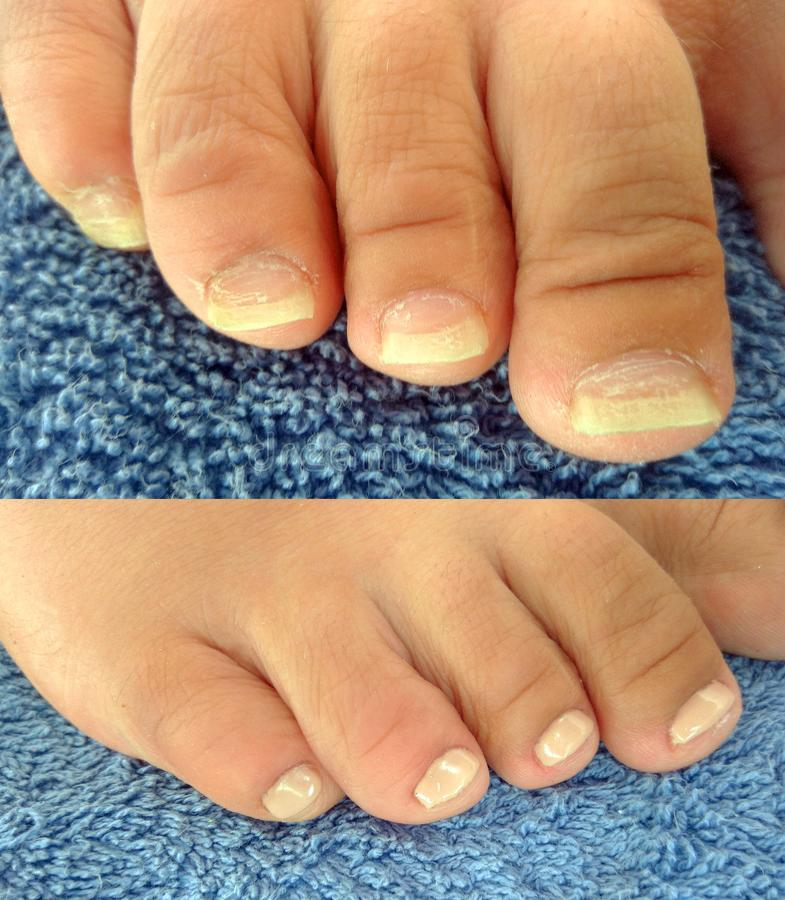 Realistyczny pedicure, chiropody: before and after zdjęcie royalty free