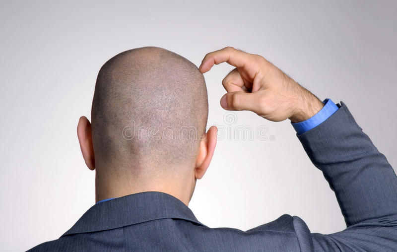 Rear view from a bald head. Man,thinking and touching his head royalty free stock photos
